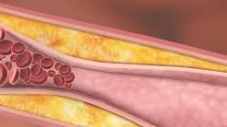 Assessment of Lekhana Basti in the Management of Hyperlipidemia